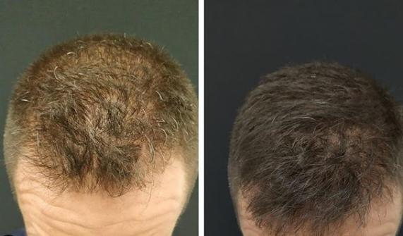 6 Meses Antes y despues Tratamiento PRP & Dutasteride