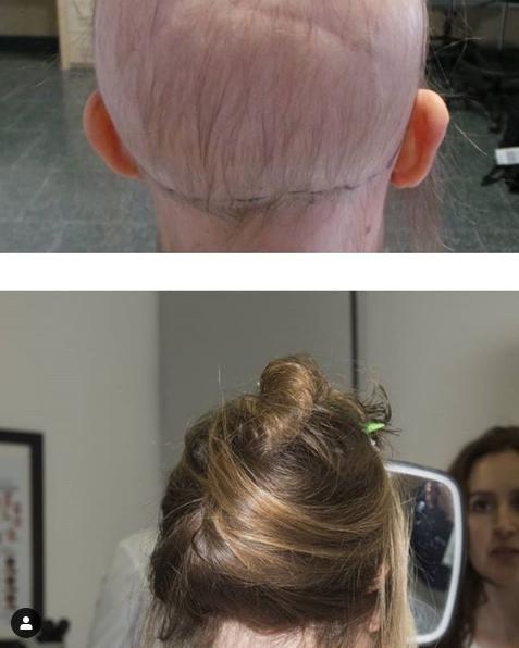 Alopecia Post Radioterapia Sitema FAS